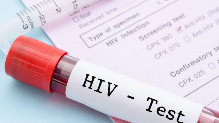 Non solo l'1 dicembre l'Aids continua a fare paura, l'arma è sempre la prevenzione